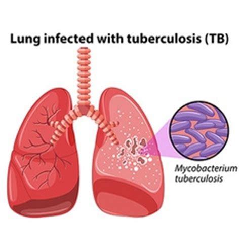 Mycobacterium tuberculosis; Essays Papers